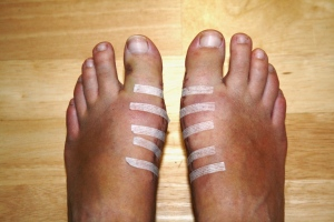 Feet after bunion surgery